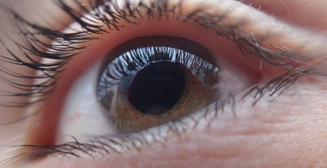 Com Eyer, pesquisa detecta alterações retinianas em pacientes graves com covid-19