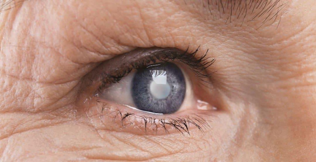 Inteligência artificial do Google detecta retinopatia diabética e edema macular