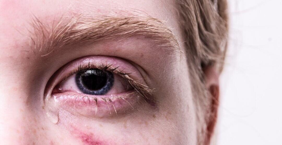 Pesquisadores encontram novo coronavírus em lágrimas de paciente