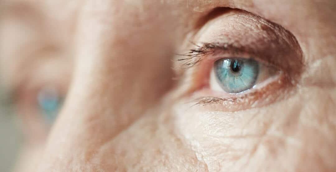O que é glaucoma? Quase metade dos brasileiros não conhece a doença