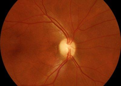 retina color
